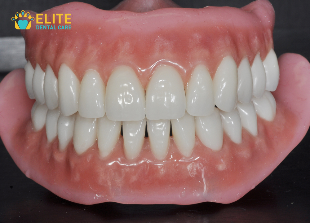 Bio functional Prosthetic System(BPS) Dentures Fixing