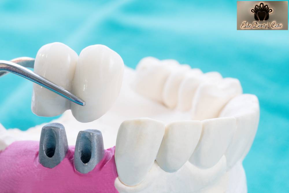 How to take care of your dental bridges – elite dental care tracy
