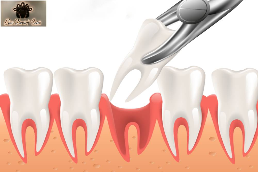 How to take care of your mouth after a tooth extraction - Elite Dental Care Tracy