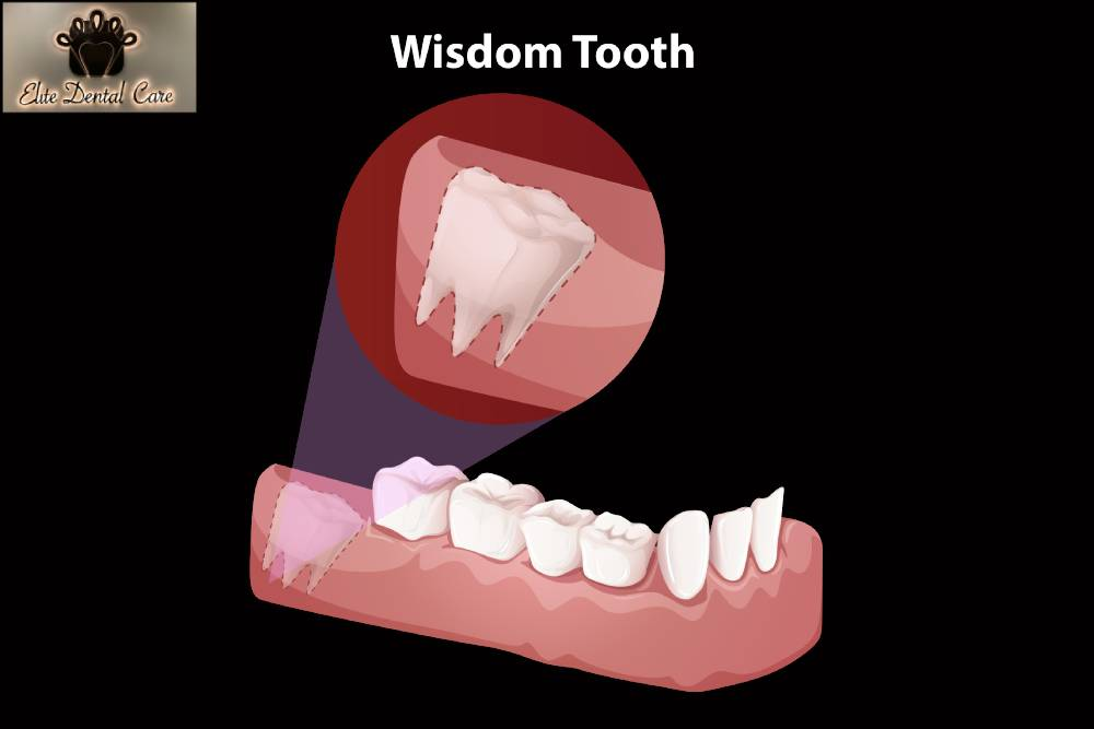 What Happens During Wisdom Teeth Extraction – Elite Dental Care Tracy