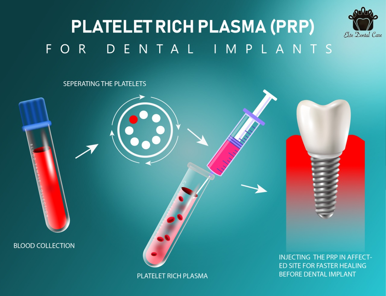 Effect of PRP on Dental Implants