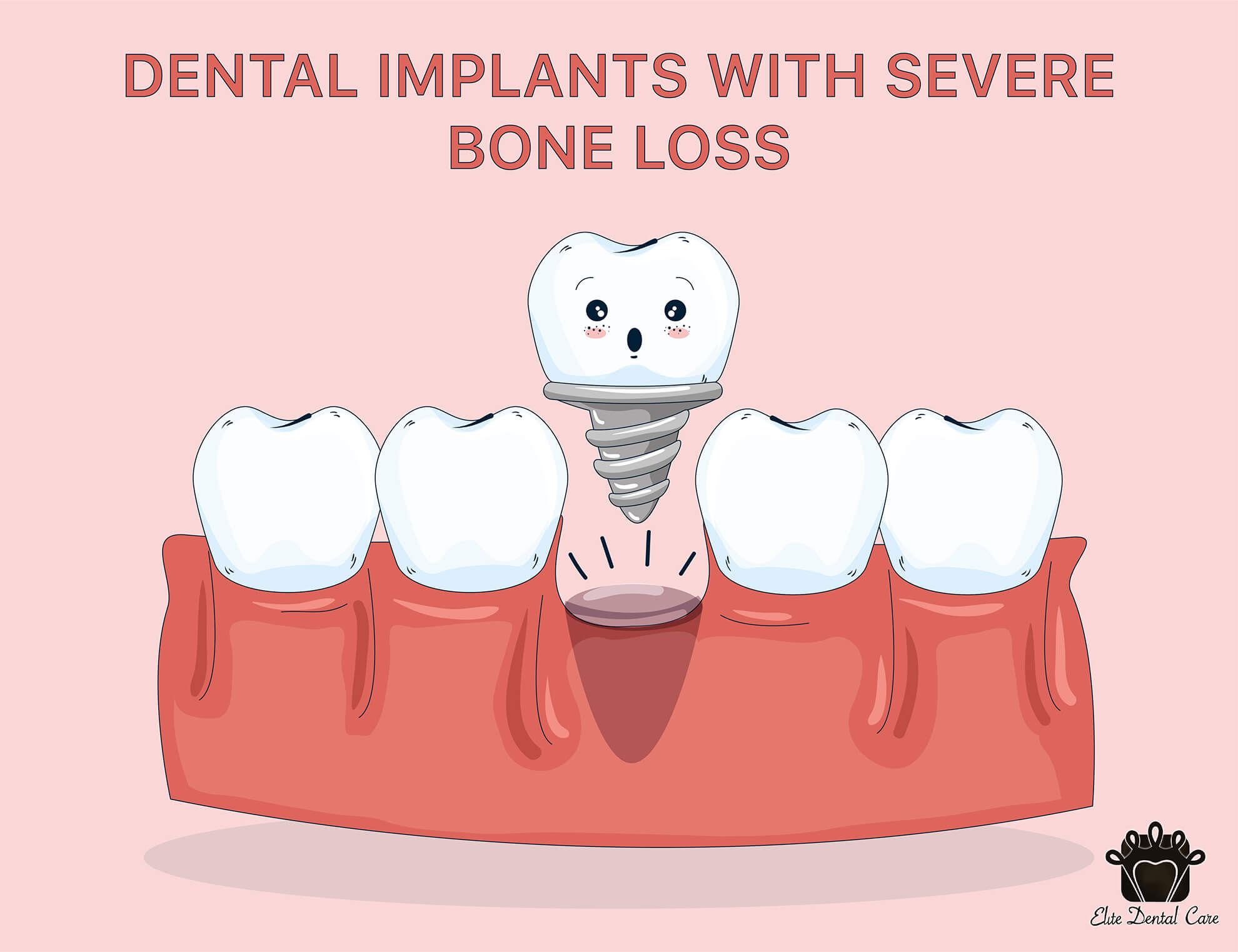 Dental Implants with Bone Loss