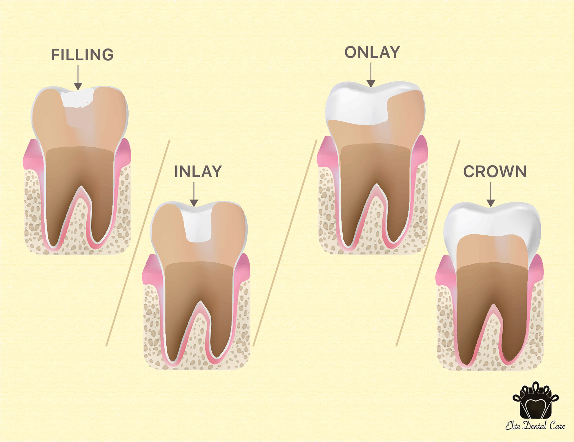 Fillings VS Inlay/Onlay VS Crown