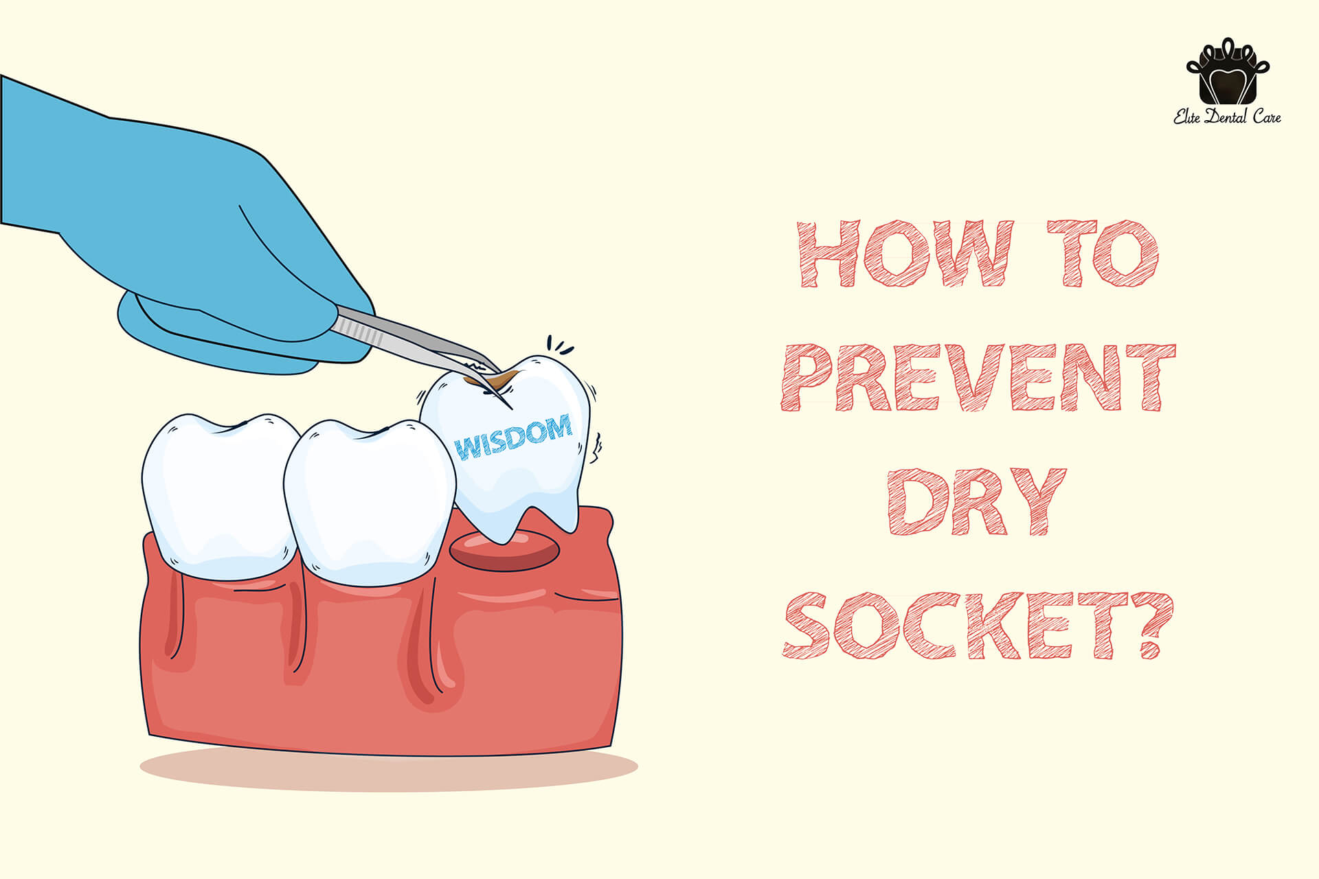 Pulled Out Wisdom Teeth? How to Prevent Dry Socket