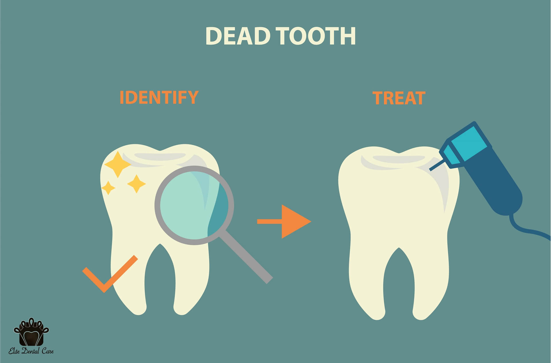 Best ways to Identify and Prevent the Dead Tooth