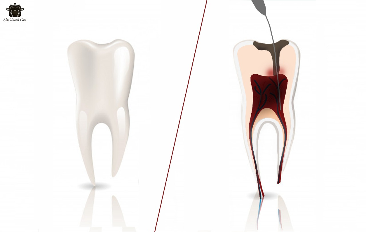 How to Know If You Need a Root Canal