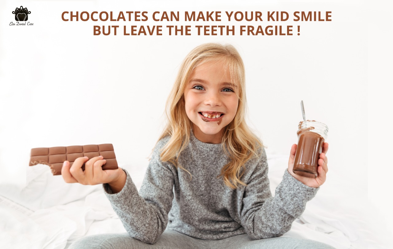 Chocolates can make your kid smile but leave the tooth fragile