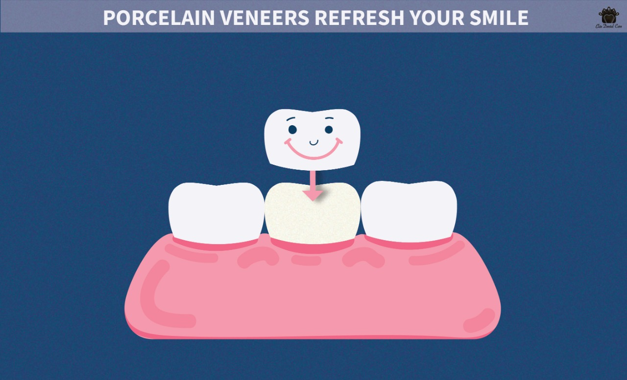 Porcelain veneers refresh your smile