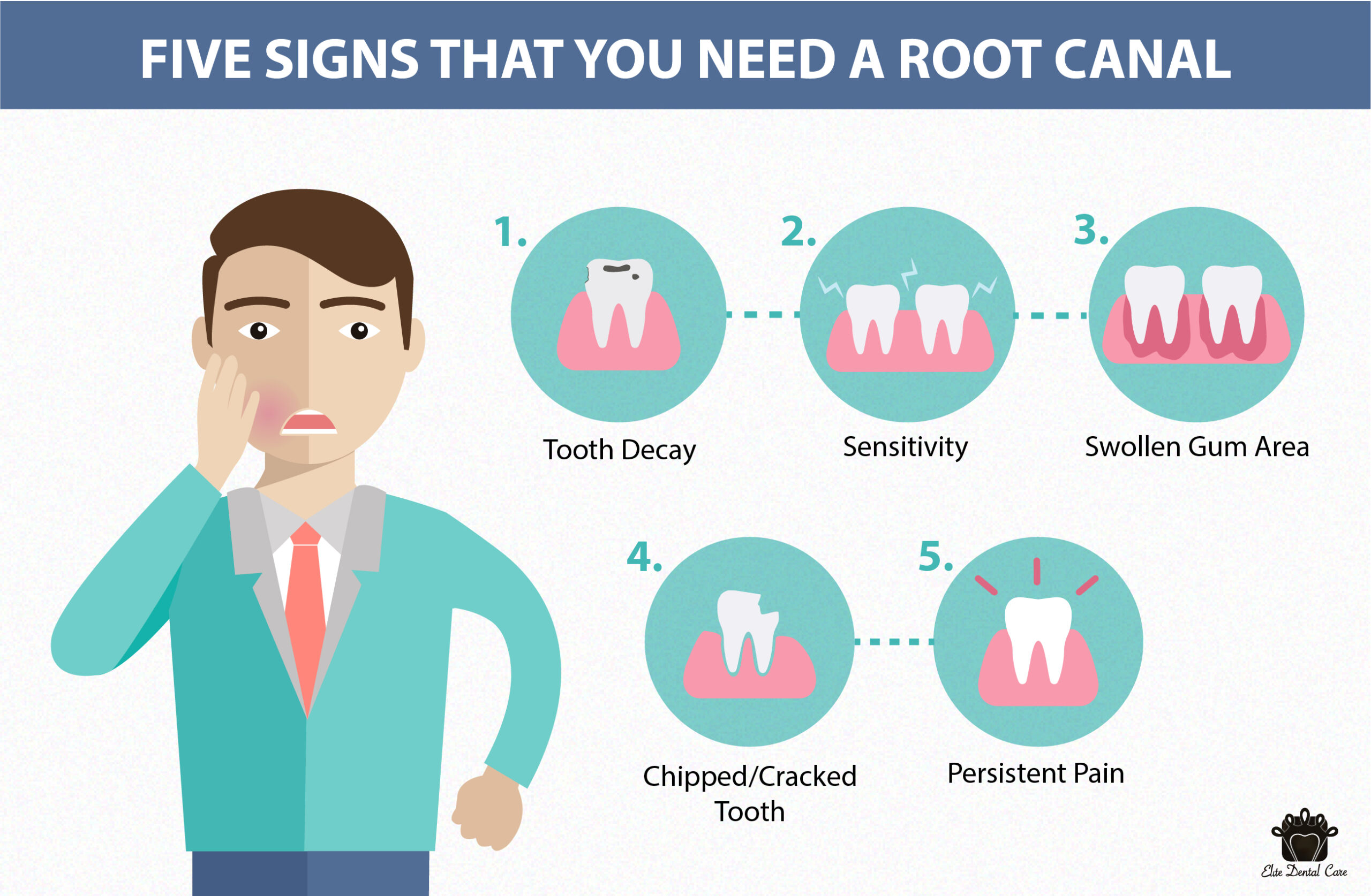 when do you need root canal