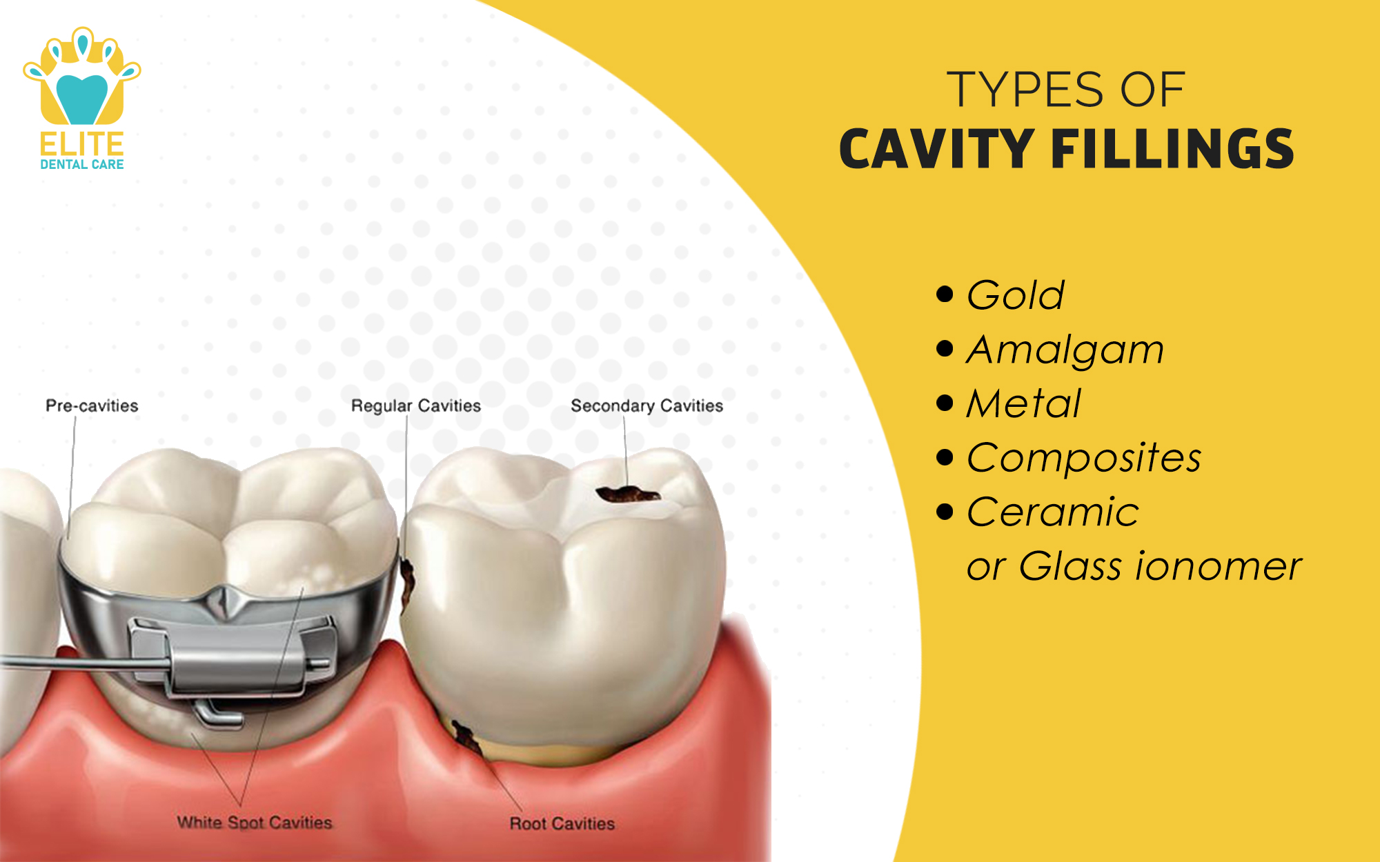 TYPES OF CAVITY FILLINGS