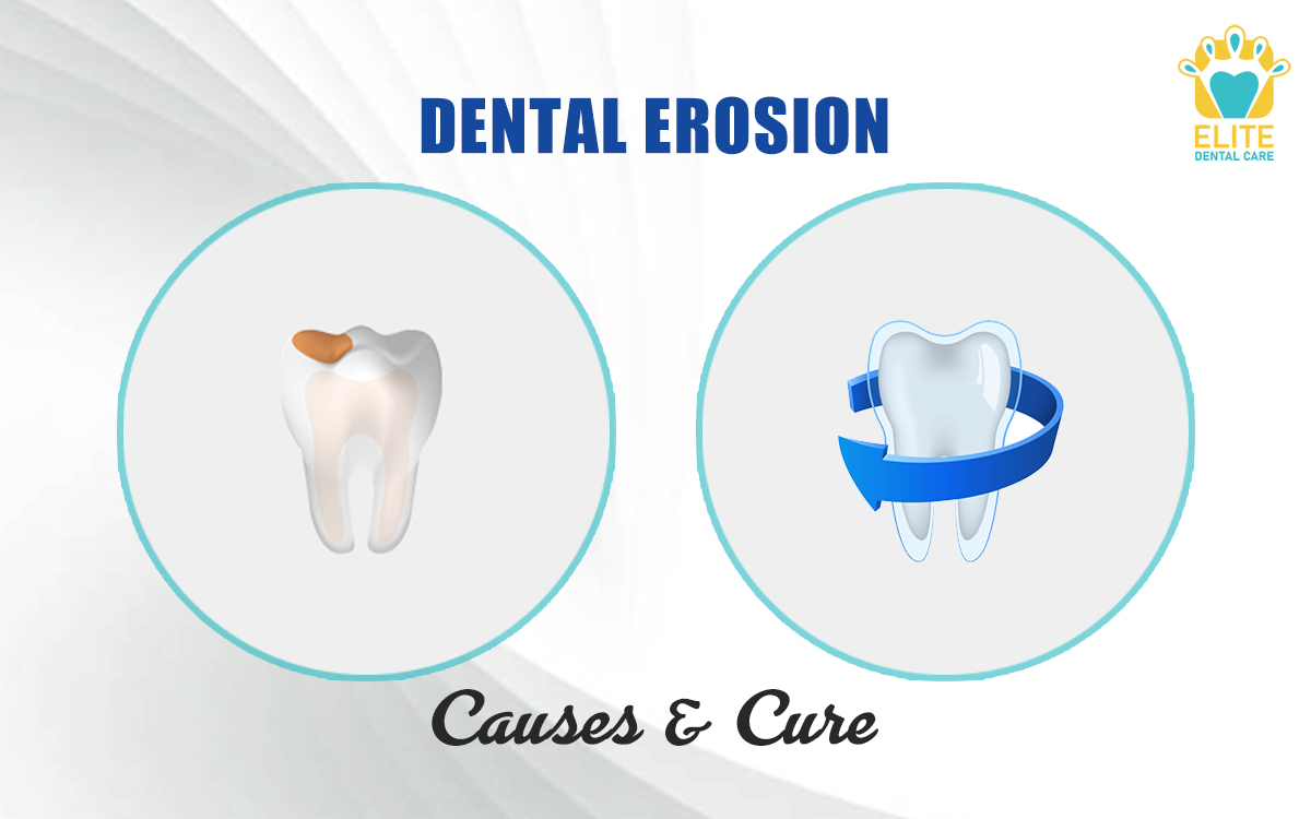 DENTAL EROSION: CAUSES AND CURE