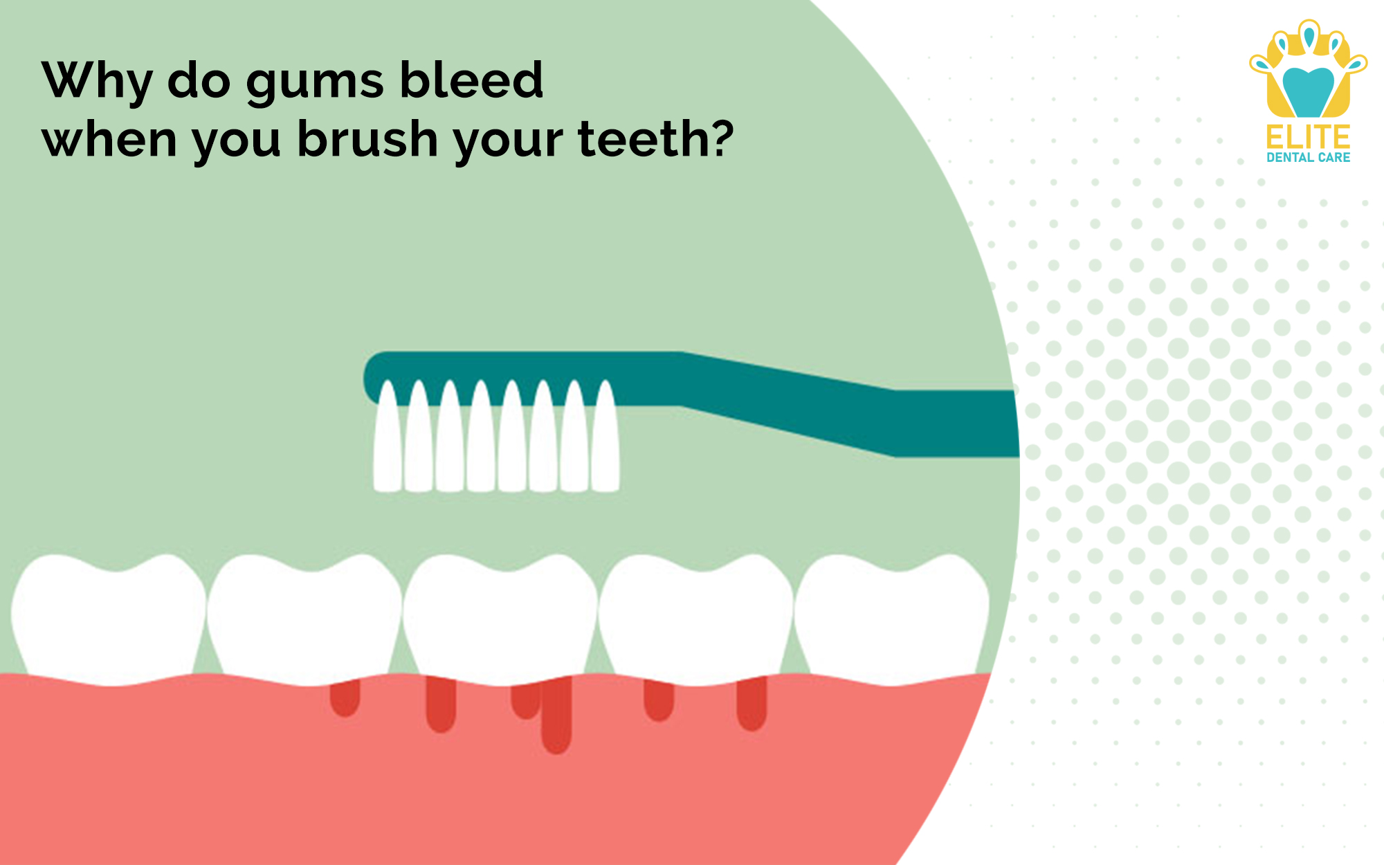 WHY DO GUMS BLEED WHEN YOU BRUSH YOUR TEETH?